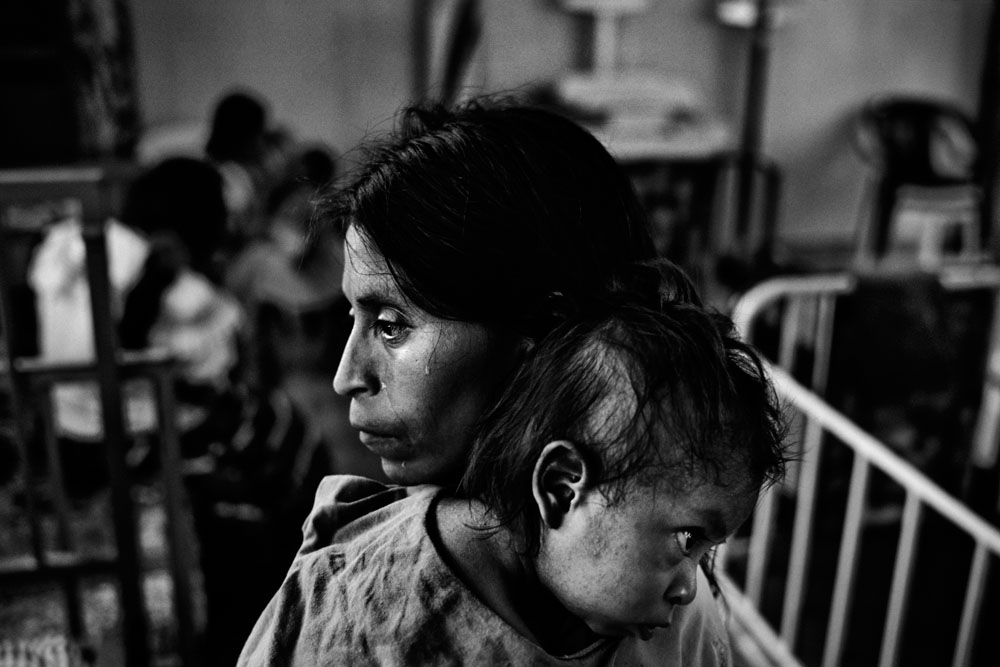 Guatemala: Marked by malnutrition