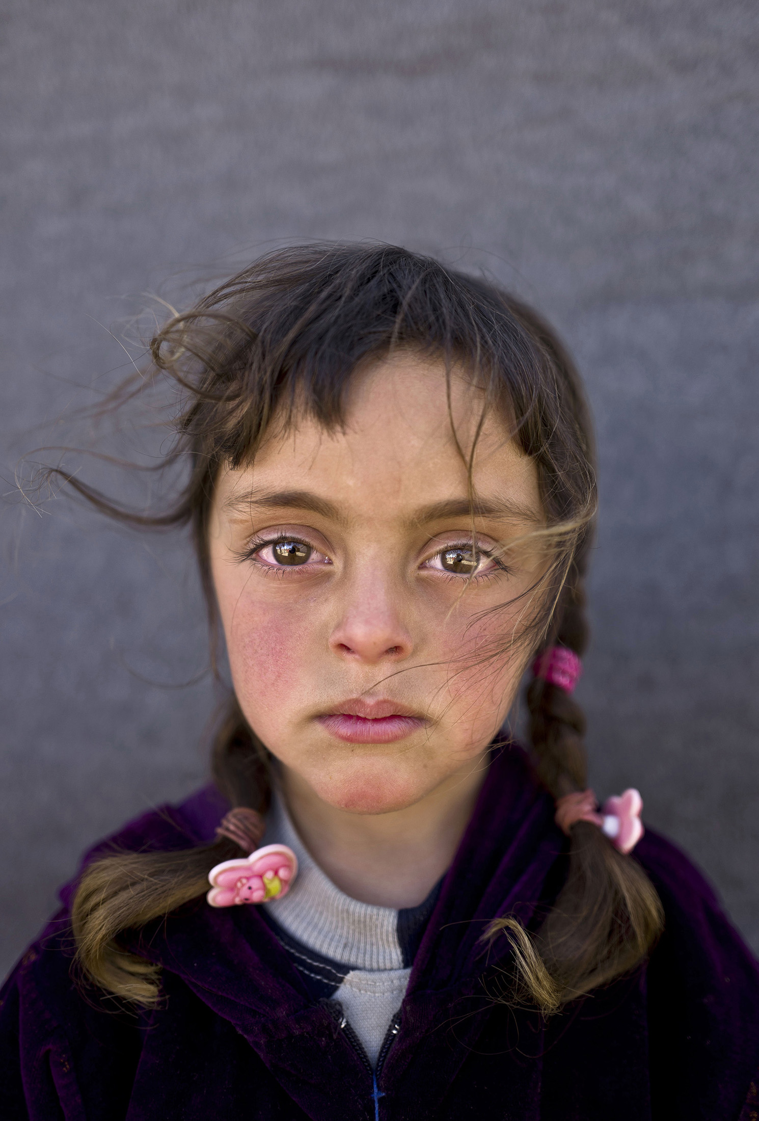 UNICEF Picture of the Year: The face of a tormented childhood